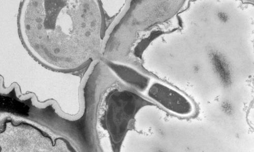 2020-05-Marta-Rodriguez-Pathogen-fungi